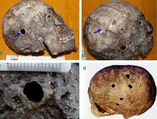 Evidence of Brain surgery in harappa, Proof of advanced ancient indian medical technology
